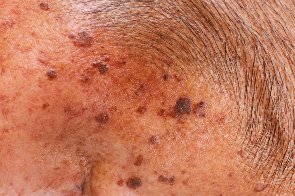 age spots, look younger