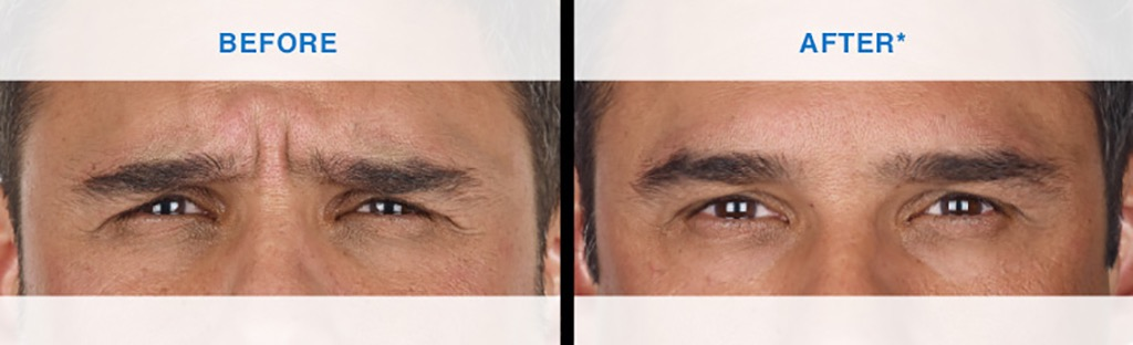 xeomin before and after skin care