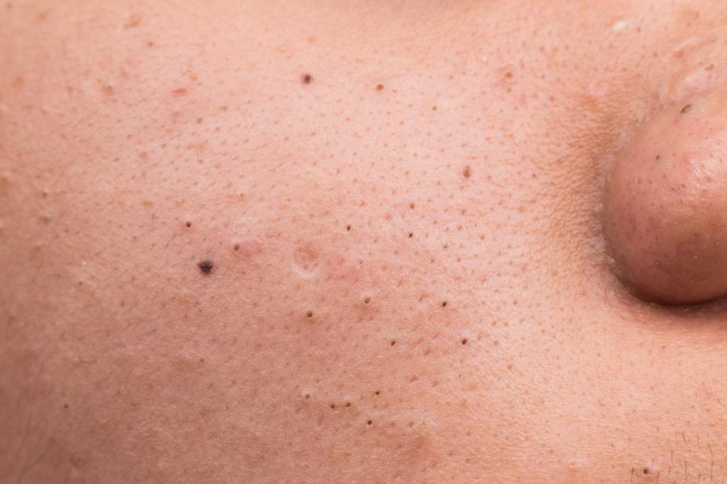 bad acne grooming worse skin