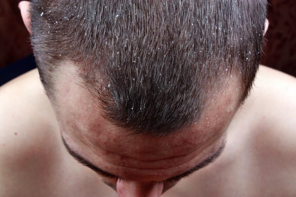 dry scalp dandruff hair