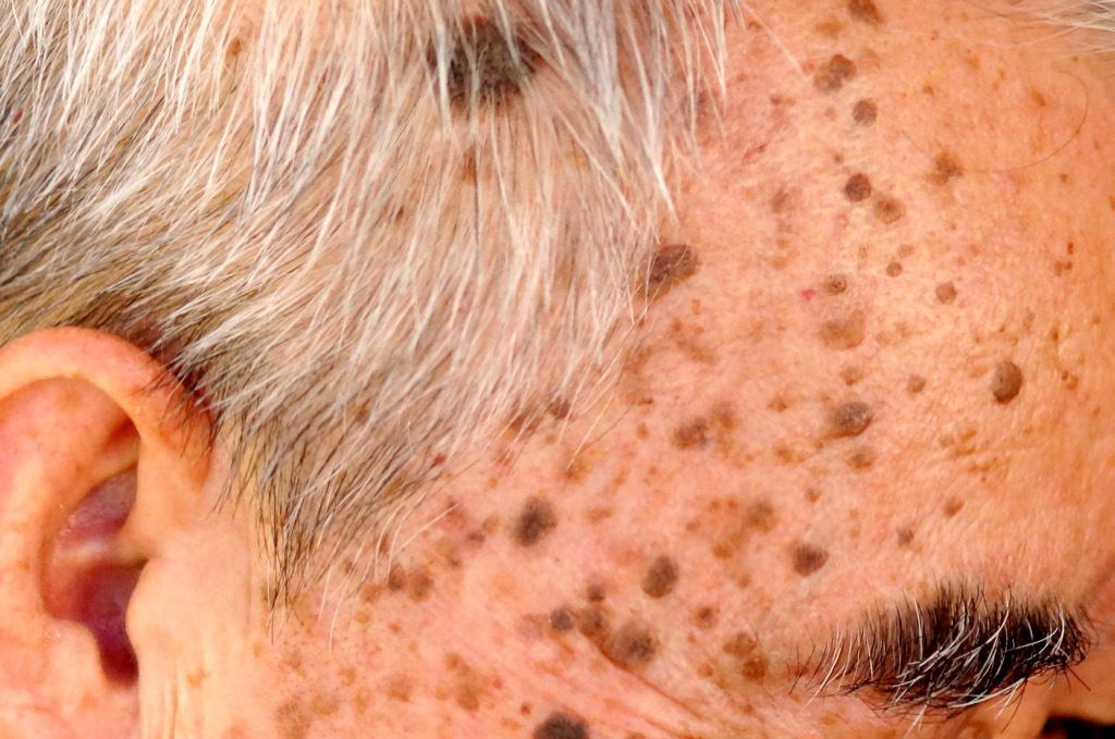 rough skin and age spots, ways your body changes after 40