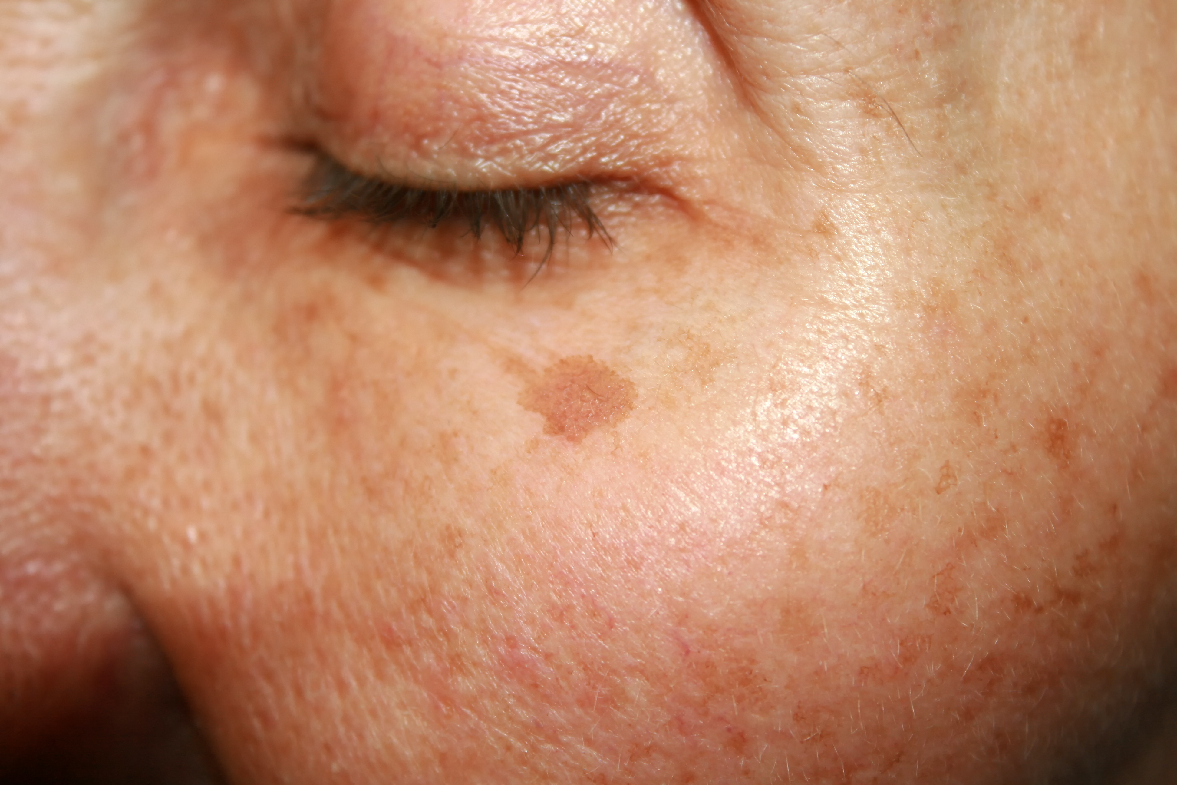 closed eye with an age spot, healthy skin after 40
