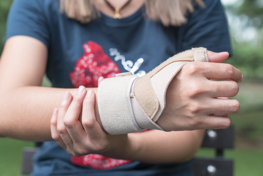 Woman with cast on wrist