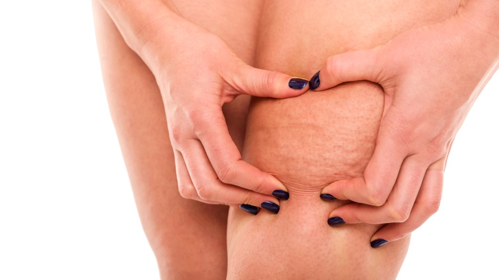 Cellulite up close Body Flaws