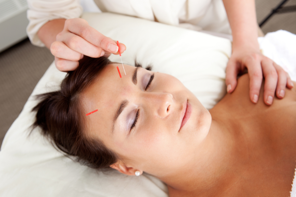 Facial Acupuncture perfect nap