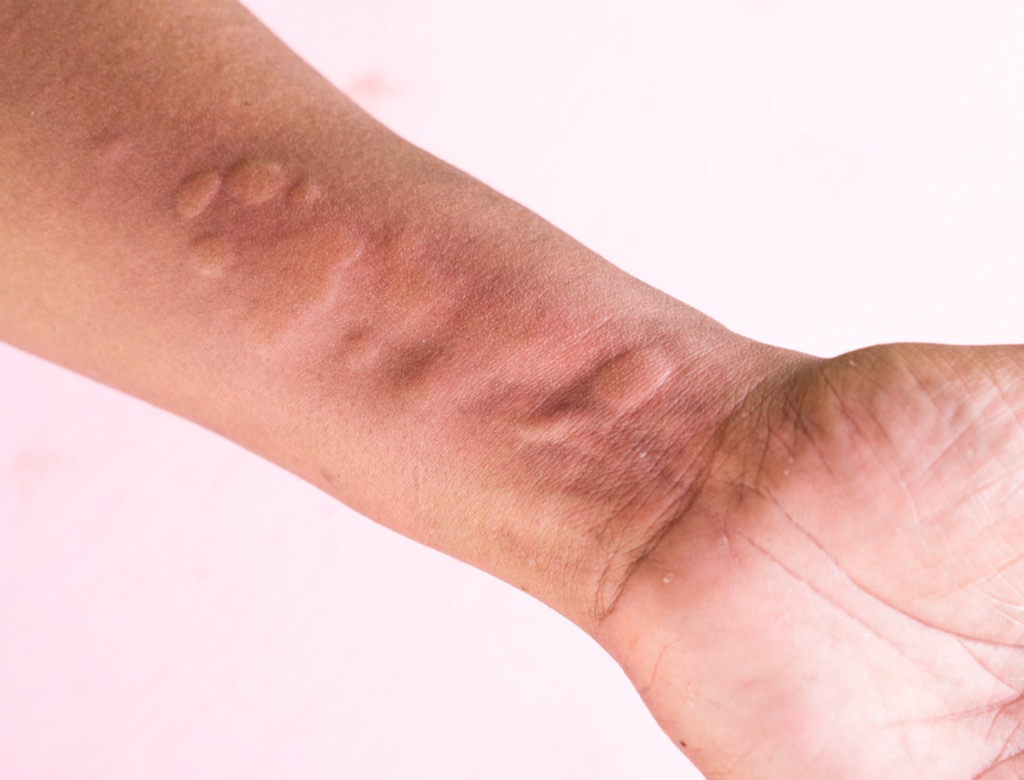 Hives on arm