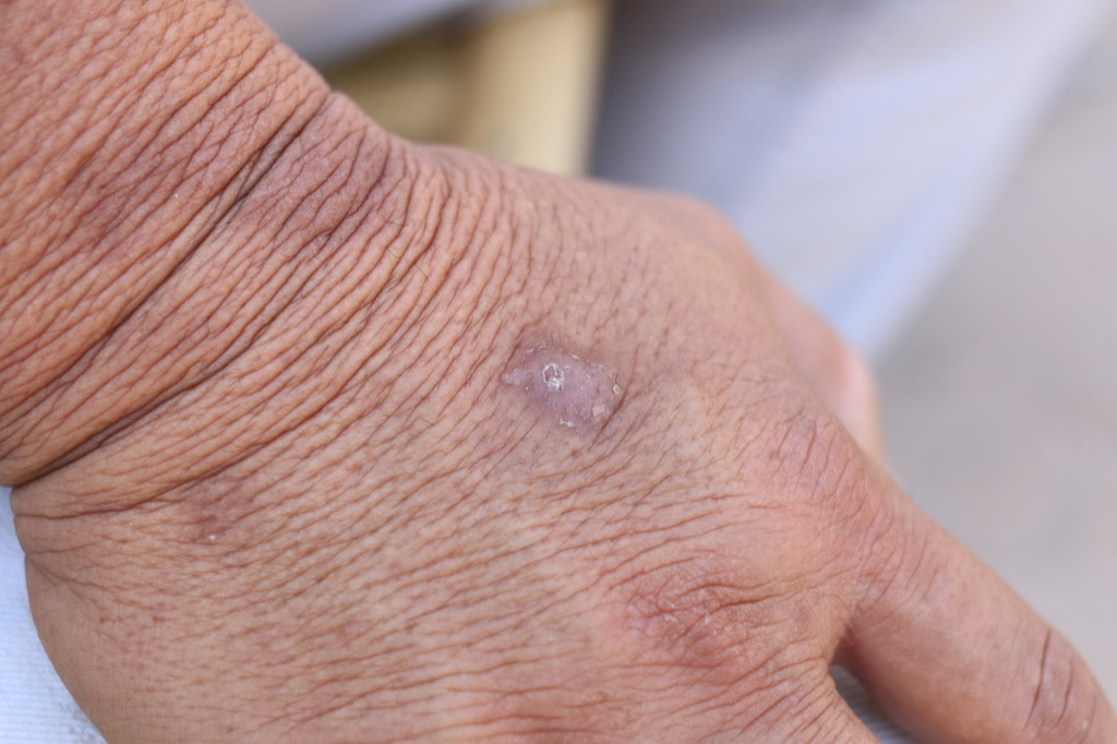 Scaly patch psoriasis