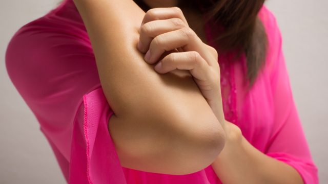Itching arm, female friend