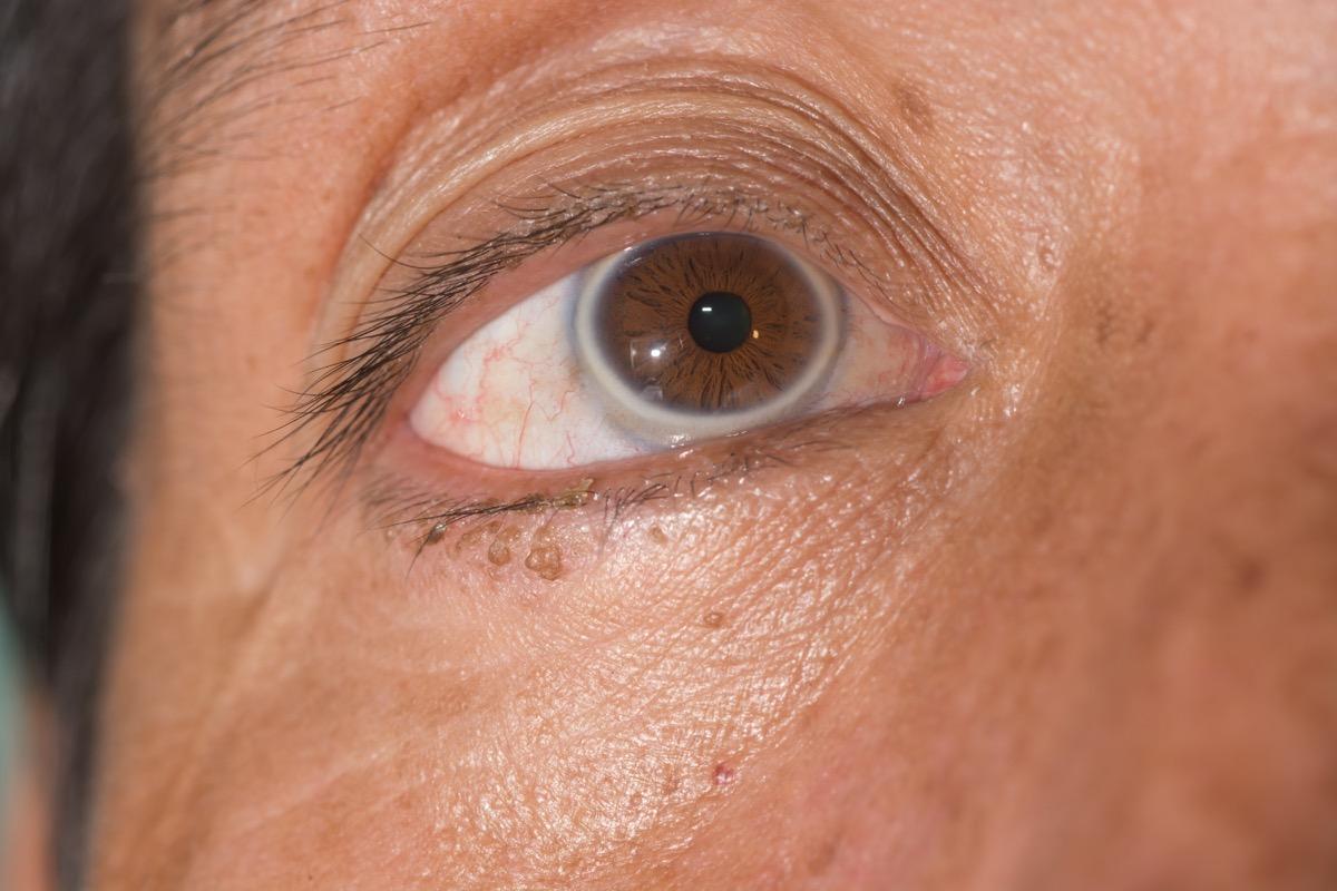 close up of arcus senilis during ophthalmic examination. - Image