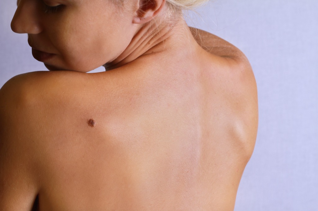 moles Body Flaws