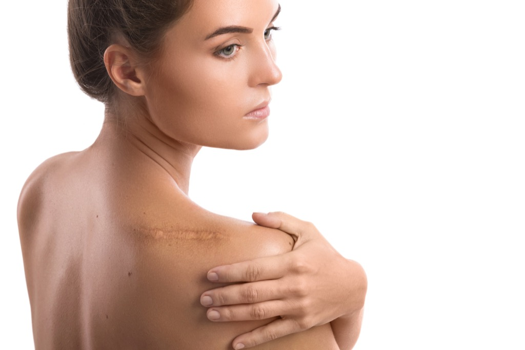 woman with scar Body Flaws