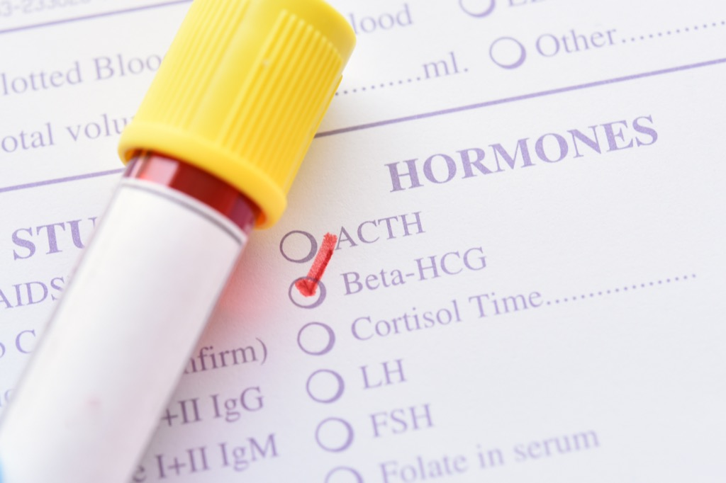 HCG Diet Dangerous Diet Fads