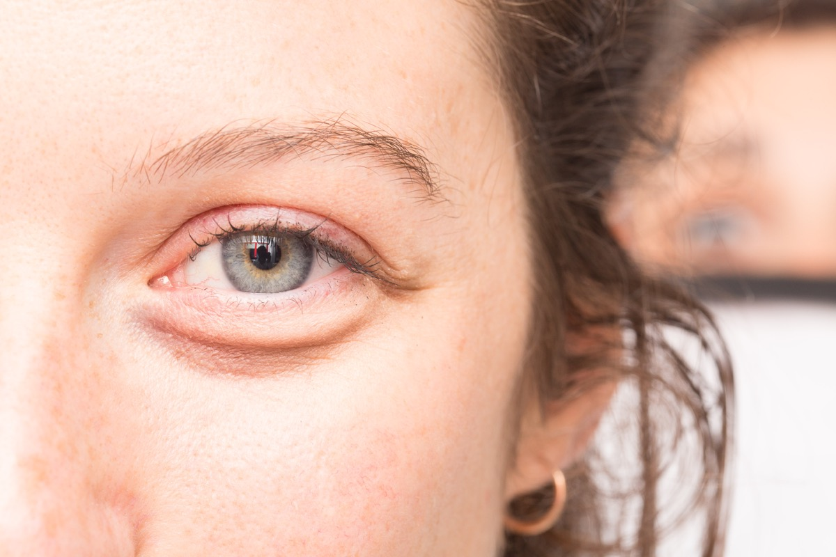 Woman with swelling around the eyes