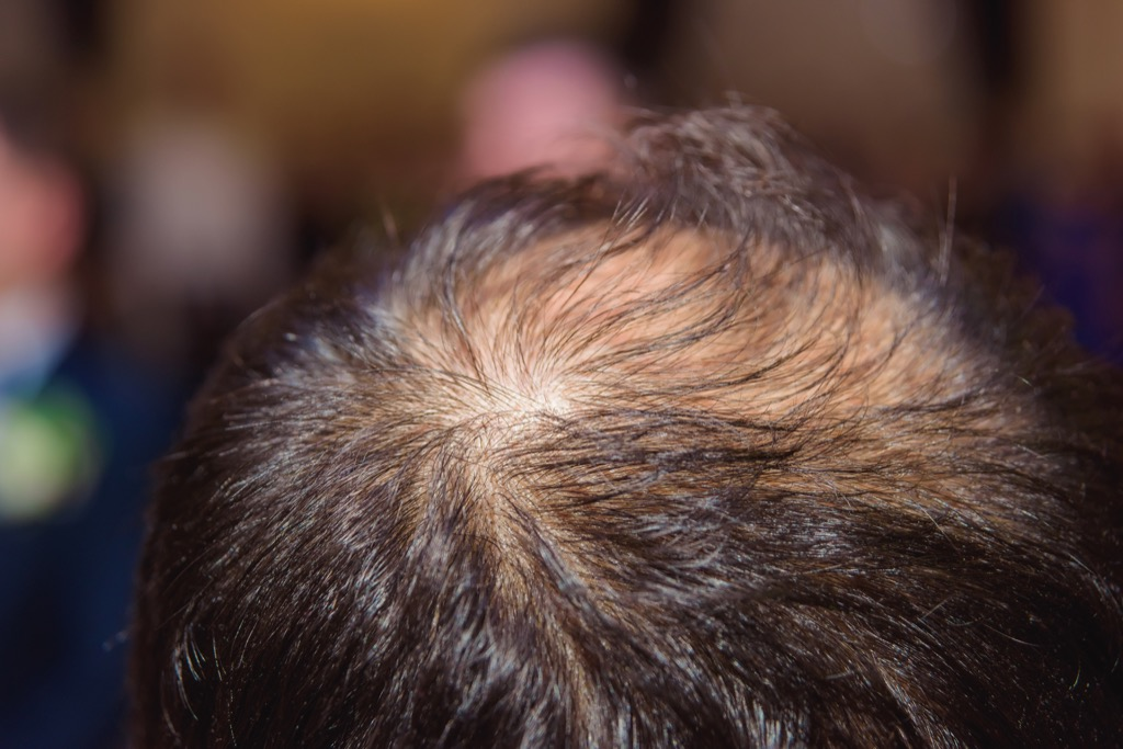 Alopecia Hair Thinning Signs Your Hair Will Go Gray