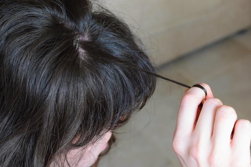 Trichotillomania Hair Thinning