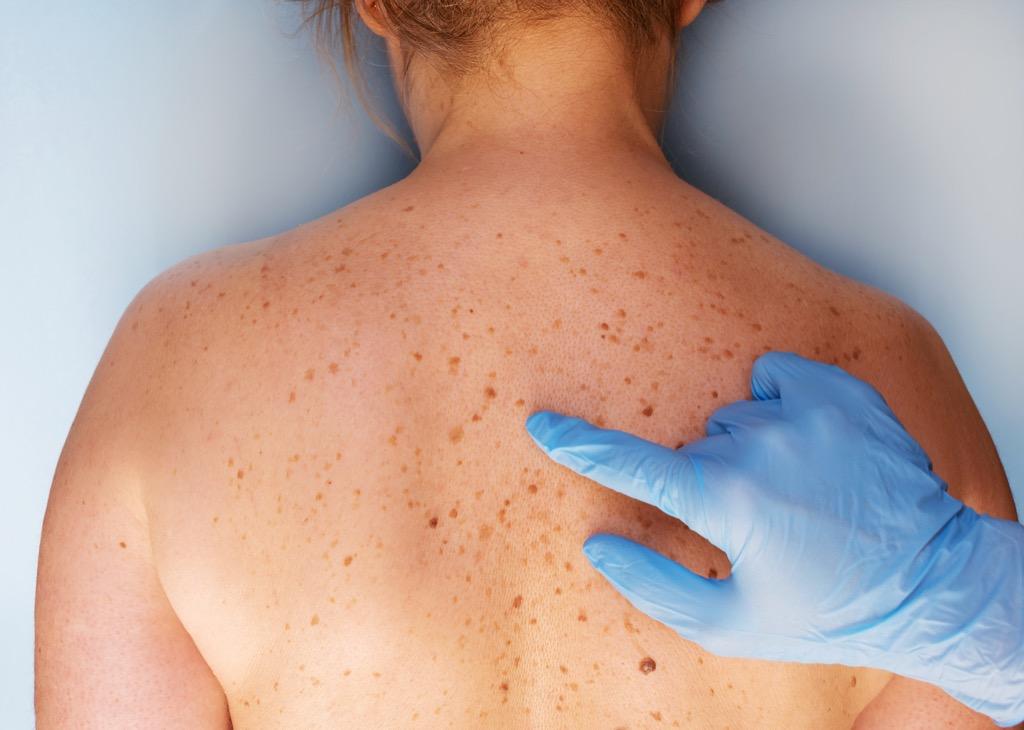 new moles Skin cancer symptom
