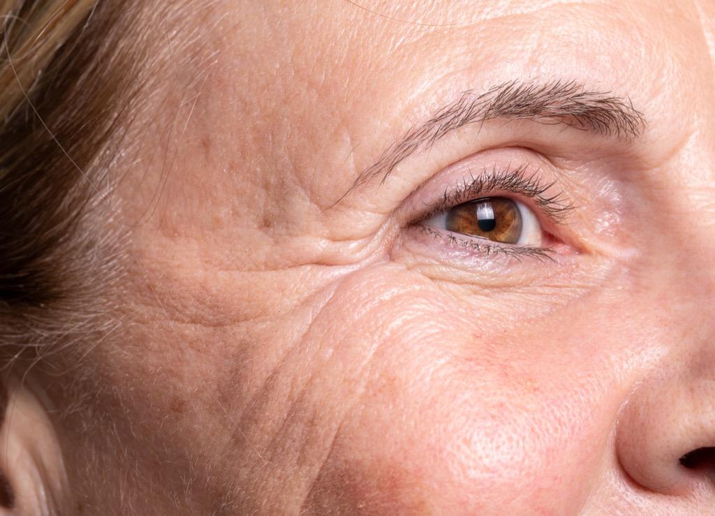 wrinkles worse skin