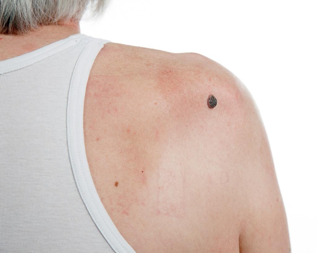 irregular mole