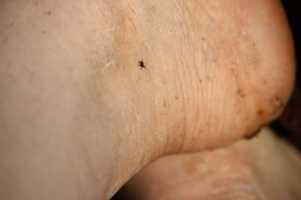 tick on human Summer Health Mistakes