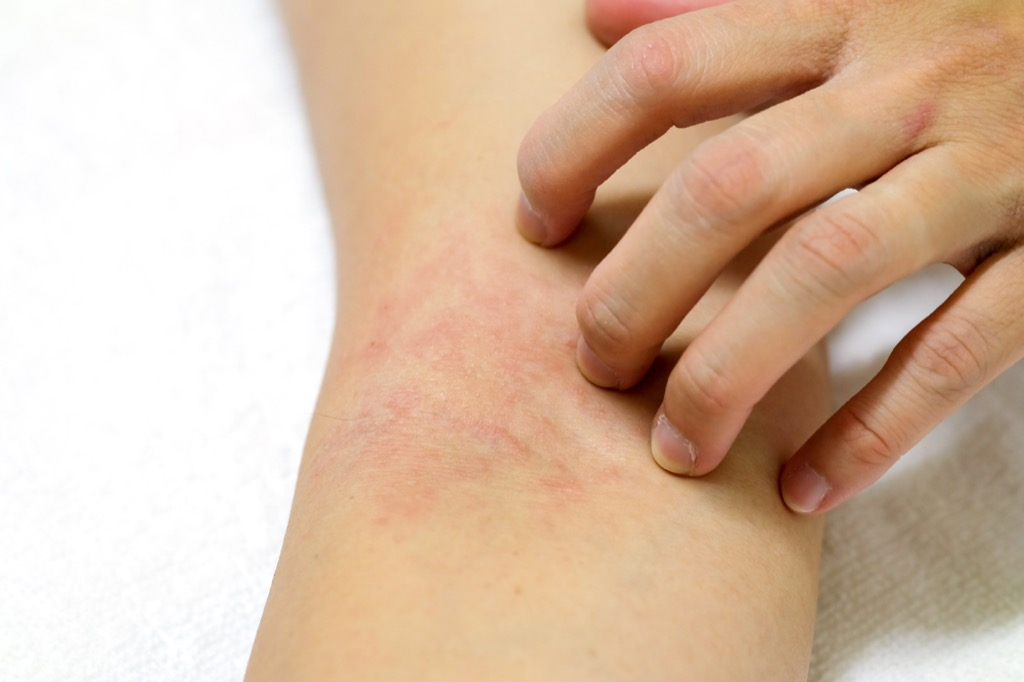 woman scratching rash on arm, signs your cold is serious