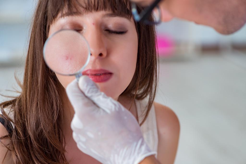melanoma skin cancer, skin cancer facts