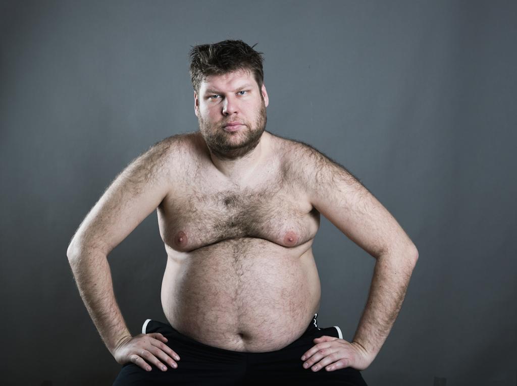 ugly fat man represents Incel