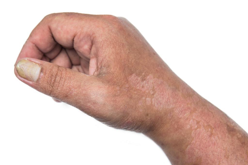 scaly skin skin care symtoms