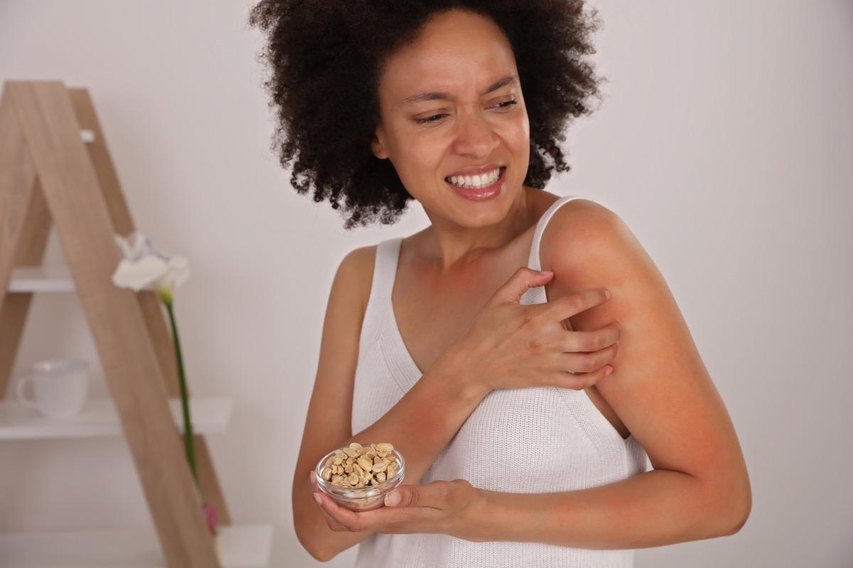 Peanut Food allergy symptoms, Irritation. Woman Scratching an itch
