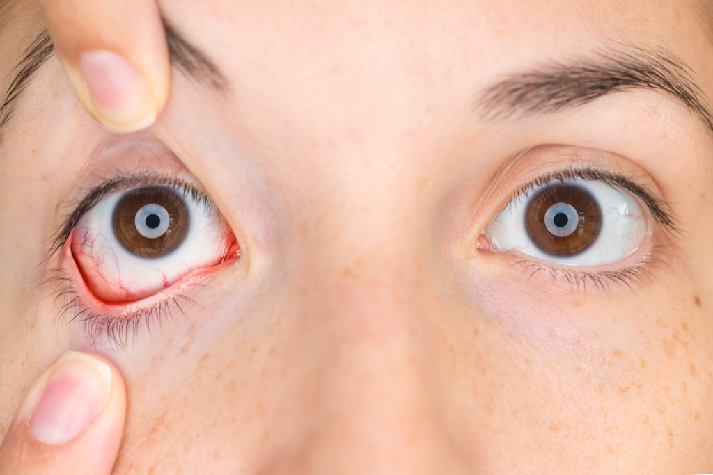 Woman's eyes are inflamed, infection, cornea
