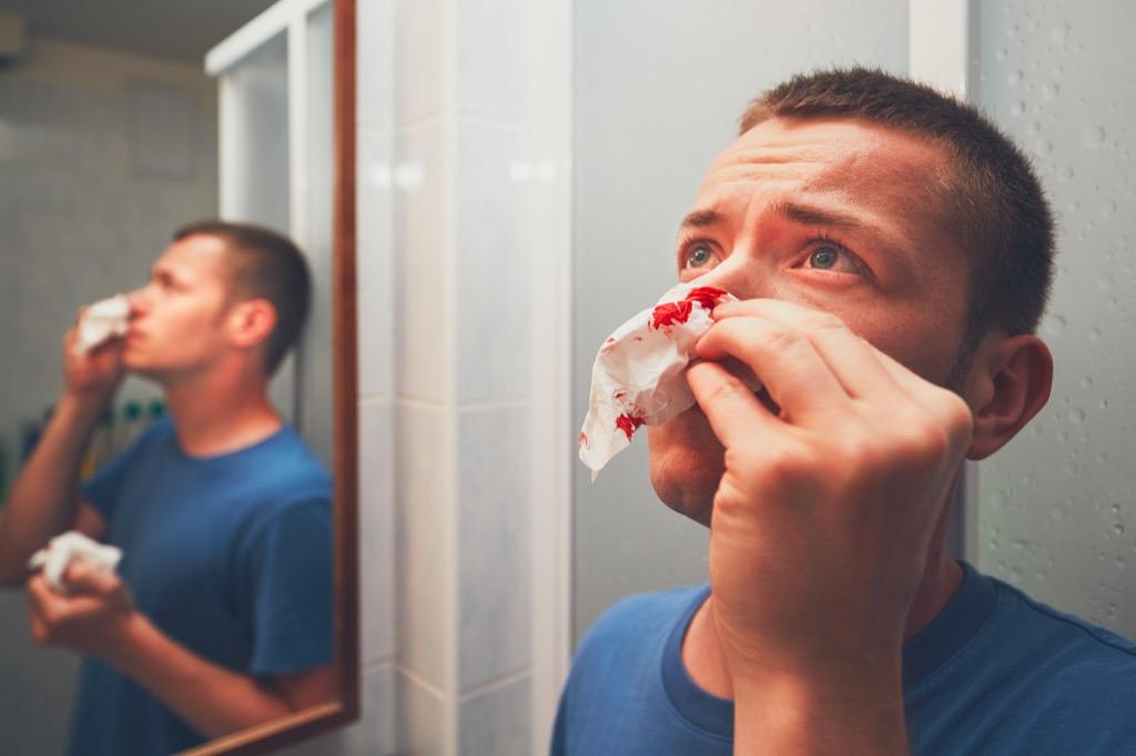 Man having a nosebleed nose bleed