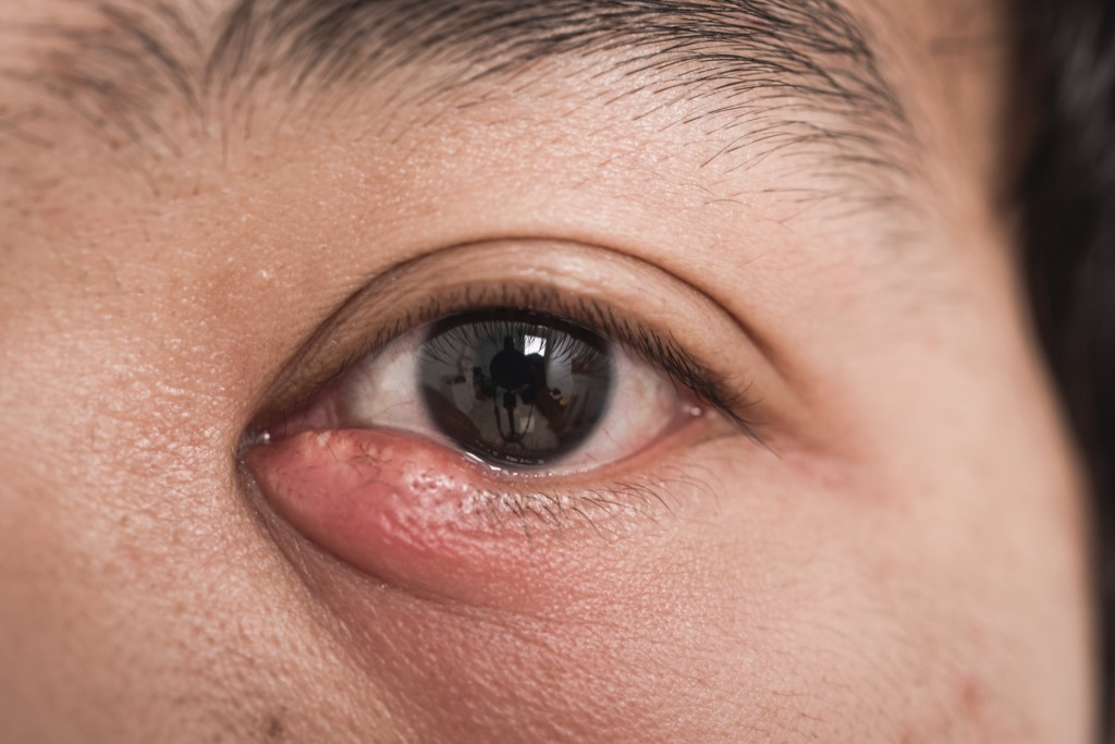 Woman with a stye on her eye