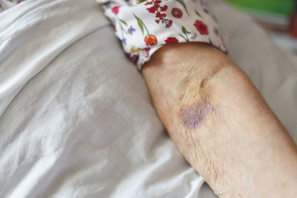 old woman with a bruise on her arm