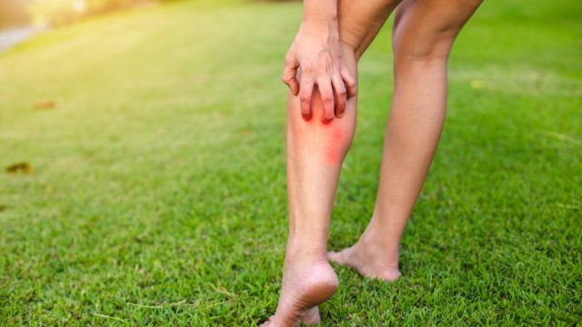 woman scratching her leg while walking in the grass