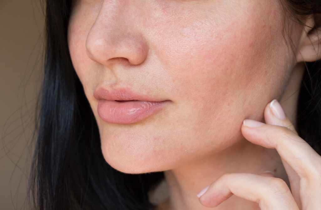 Woman with Dry Skin {Thyroid Problems}