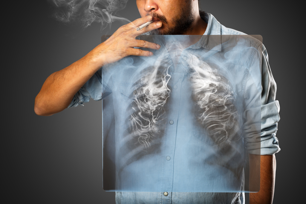 Man with Lung Cancer Diseases That Affect Men