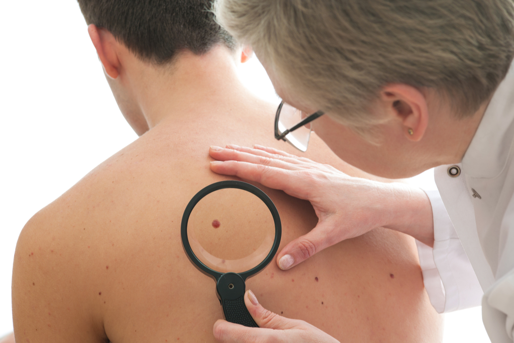 Man with Skin Cancer Diseases That Affect Men men's health concerns over 40