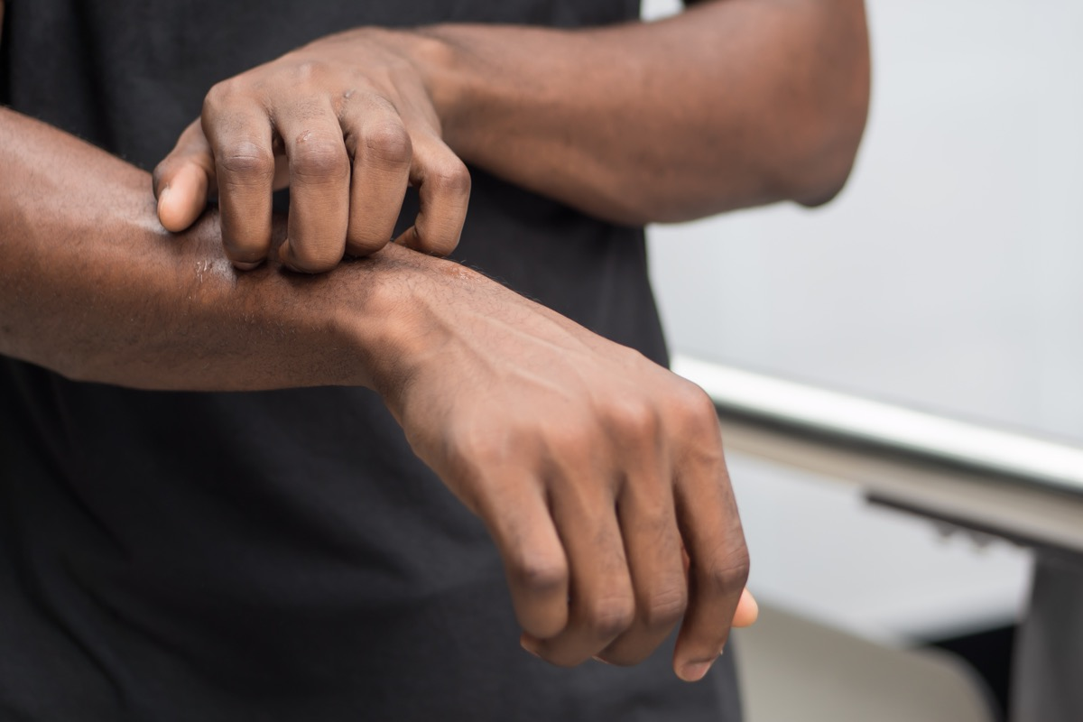 black man itches arm, only arms are shown