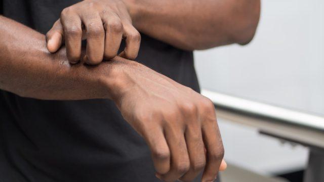 black man itches arm