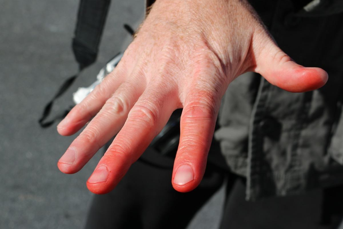 common injuries