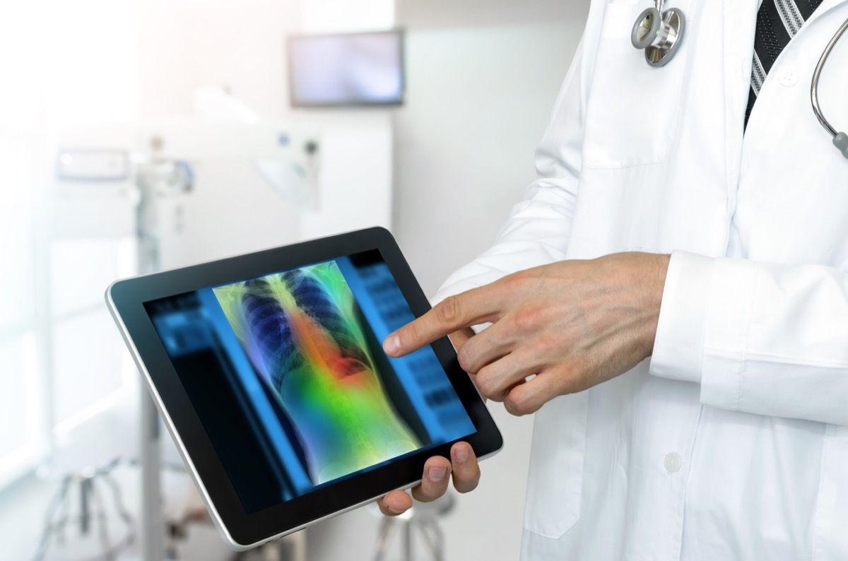 doctor shows patient chest x-ray on tablet