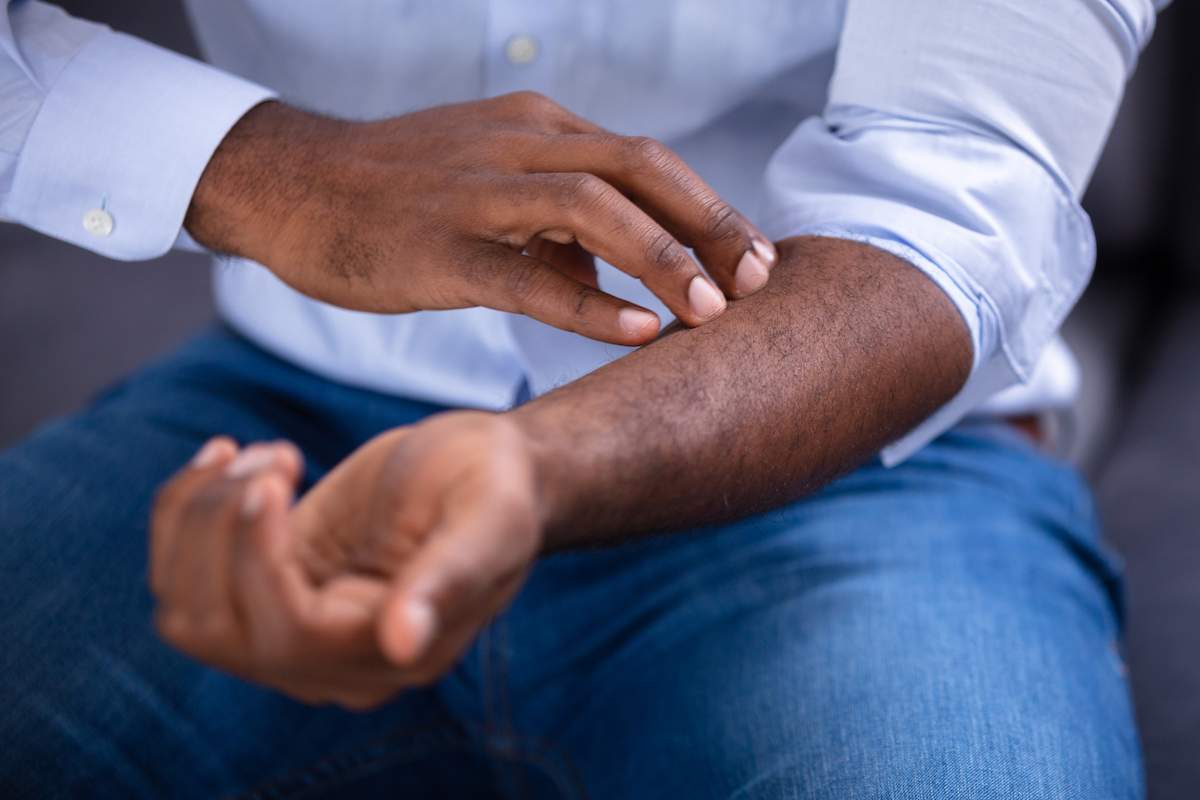 Close-up Of An African Man Scratching His arm