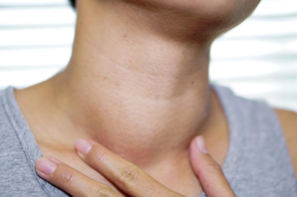 Goiter {Thyroid Problems}