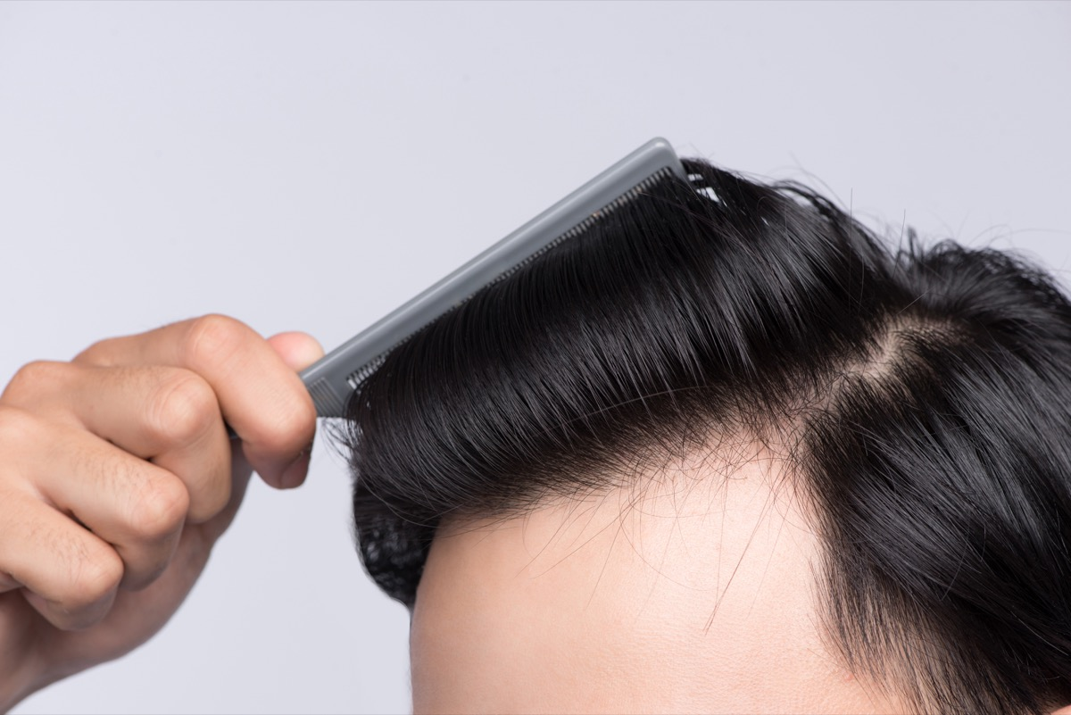 Close up photo of clean healthy man's hair. Young man comb his hair - Image
