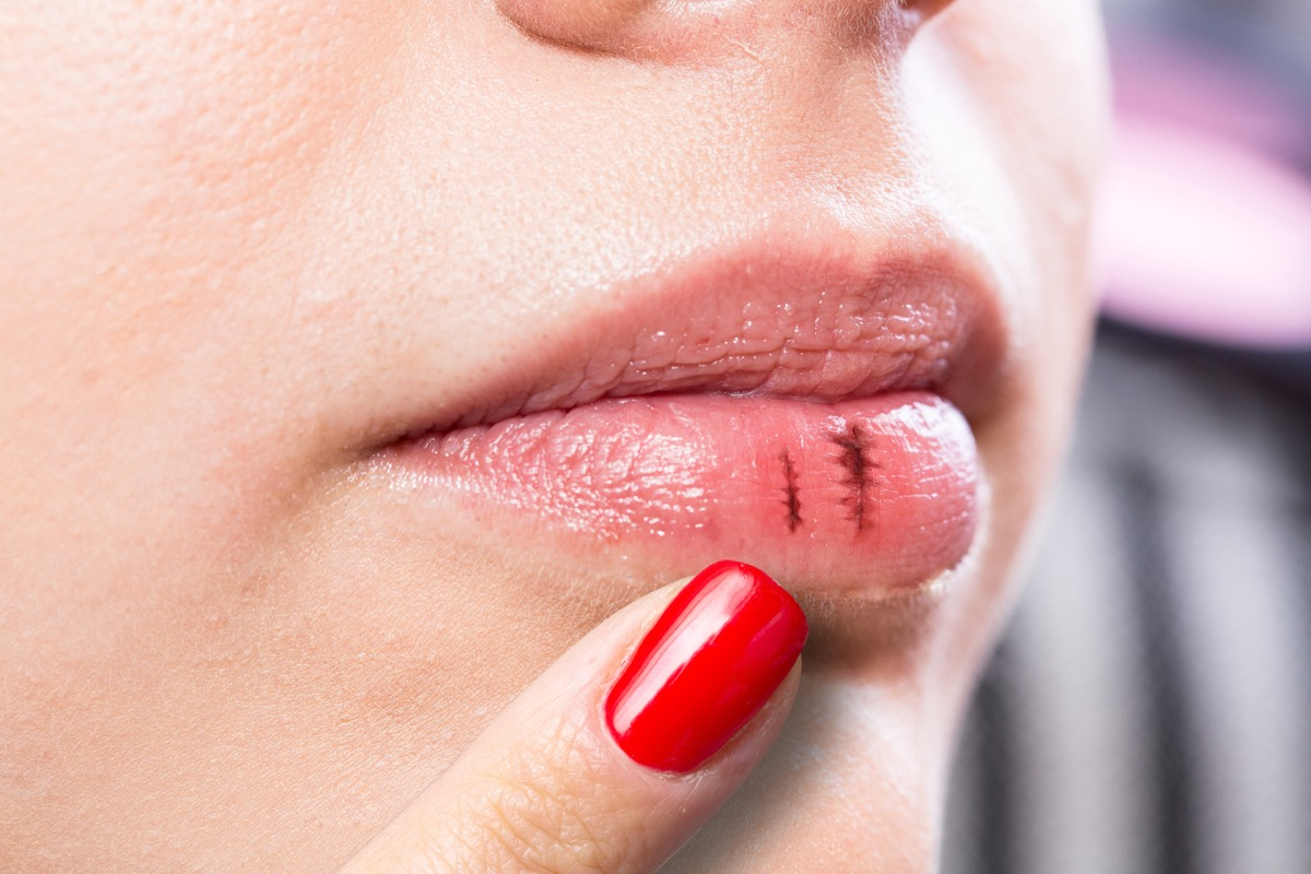 Woman with Chapped and Bleeding Lips {Allergy Symptoms}