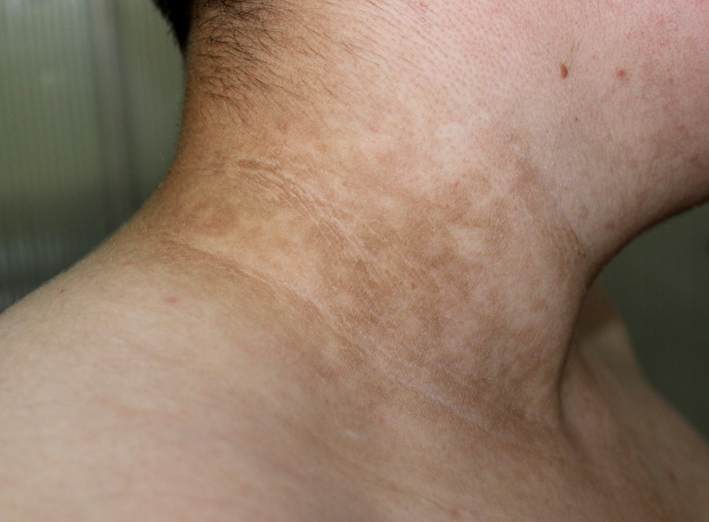 Discoloration of the Skin From Diabetes