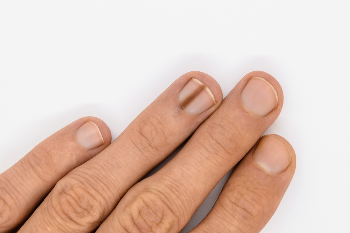 Nail with brown line