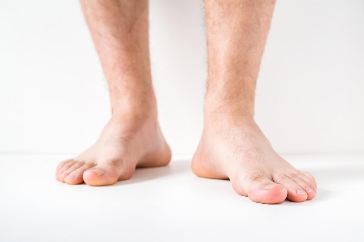 man's feet, subtle symptoms of serious disease