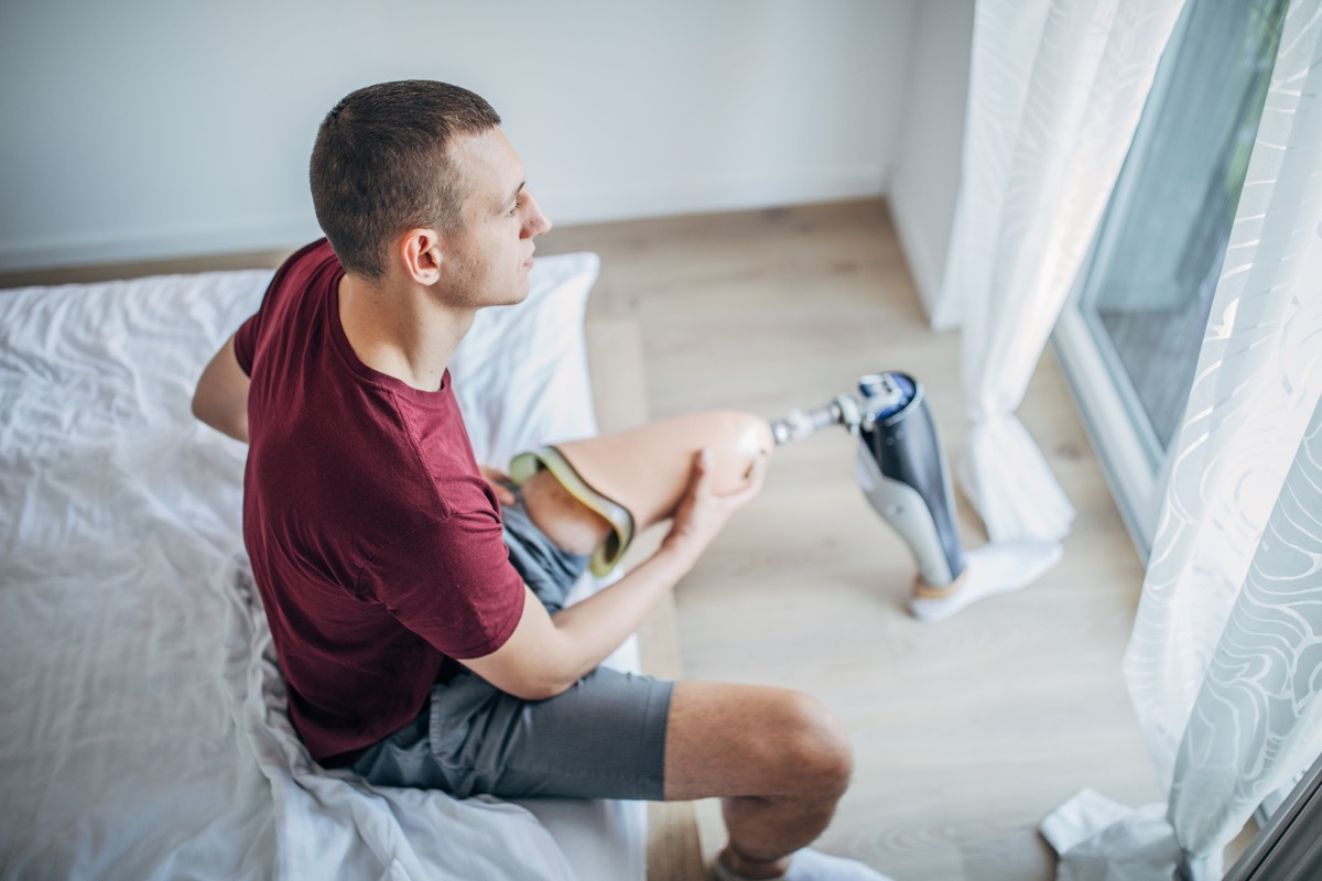 Young man with amputee leg putting on his prostheses leg