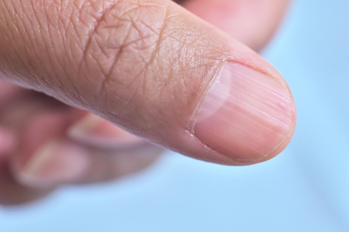 lunule on fingernail names of everyday items