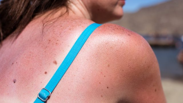 woman with sunburn on beach what happens to your body when you get a sunburn